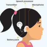 Cochlear_Implant_big-496x379_big-527x400